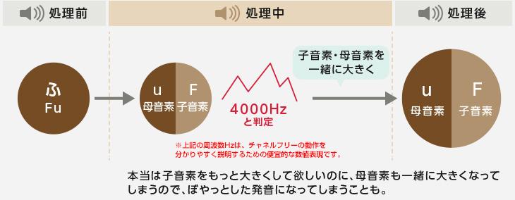アクトス補聴器NR 通常の補聴器